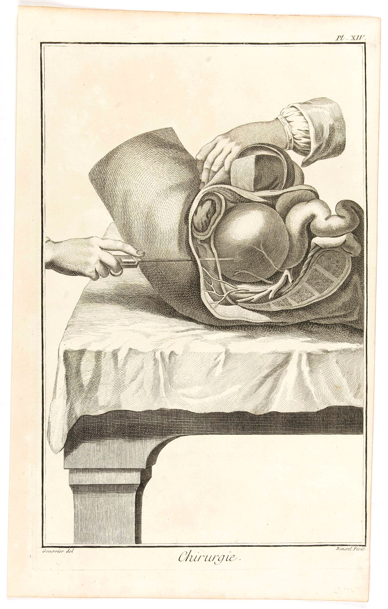 DIDEROT, D. -  Chirurgie, plate XIV.