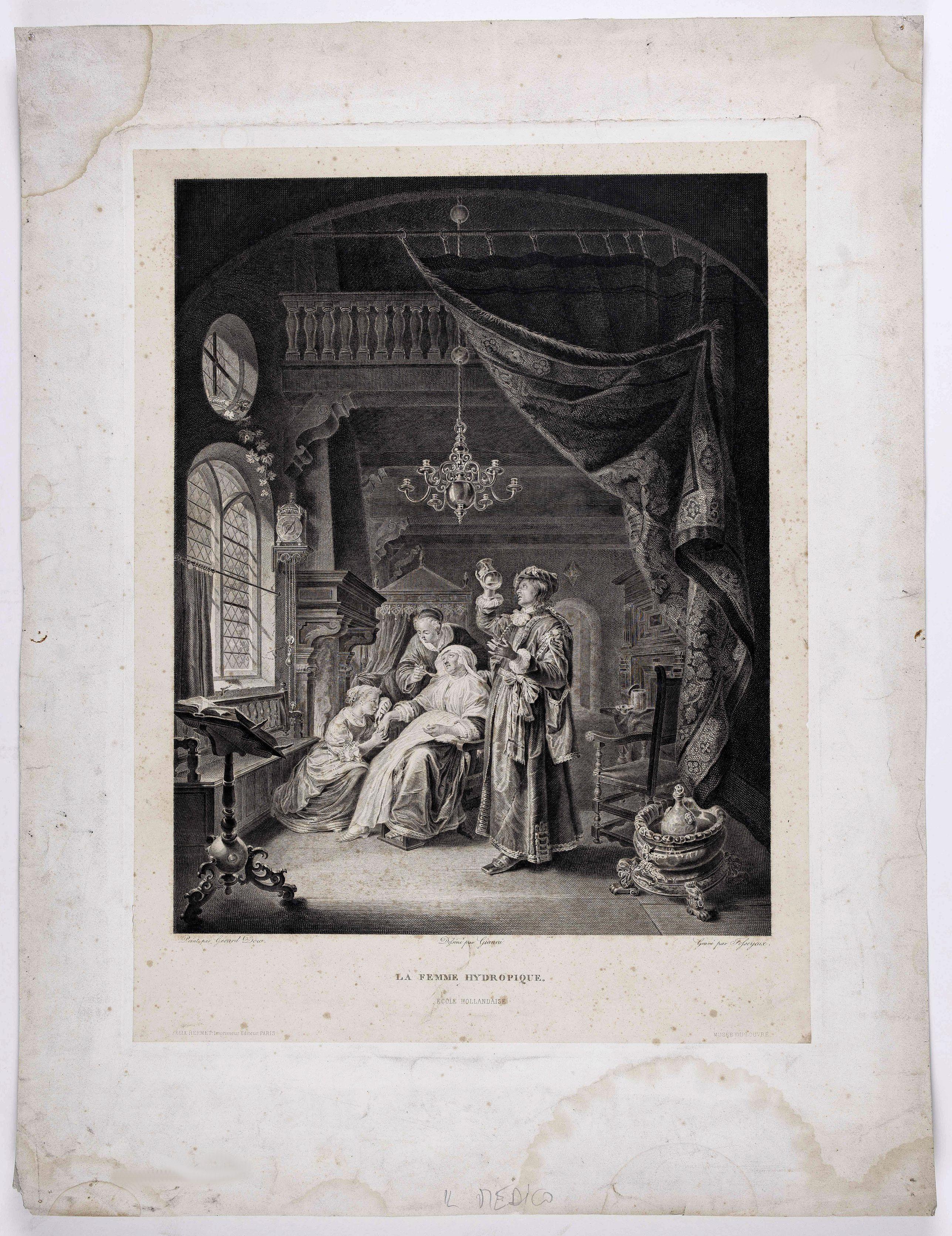 DOUW, G. (after) - La femme hydropique. Ecole Hollandaise.